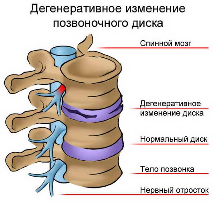 защемление нерва в грудном отделе когда возникает