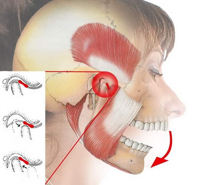 При артрите сводит челюсть