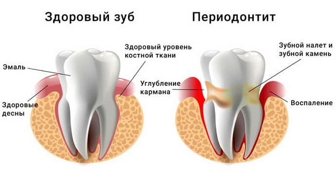При периодонтите сводит челюсть