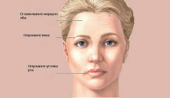 При воспалении троичного нерва сводит челюсть