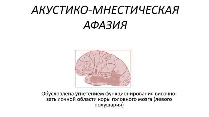 Как возникает акустико мнестическая афазия