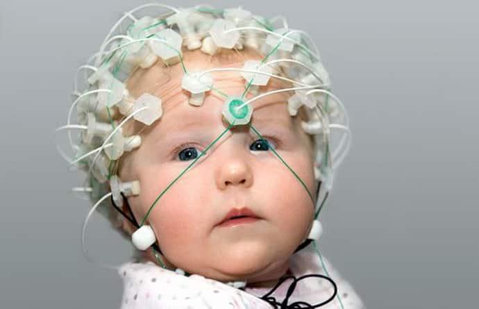 Обследования при дцп у новорожденного