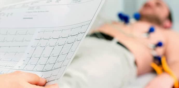 ЭЭГ при кардеоневрозе