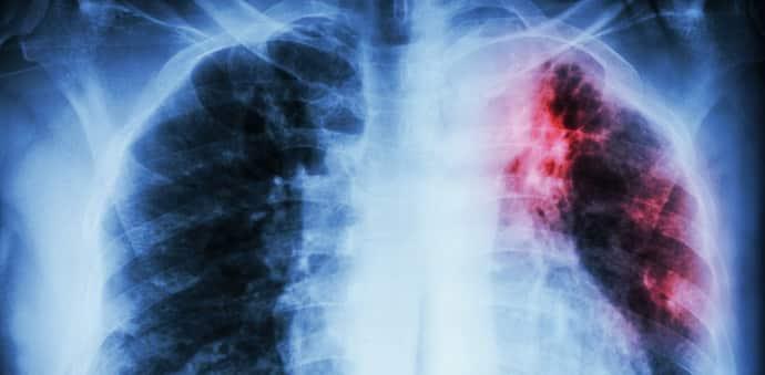 При туберкулезе возникает межреберная невралгия