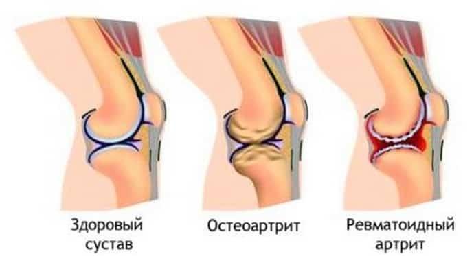 Артрит вызывает онемение ног