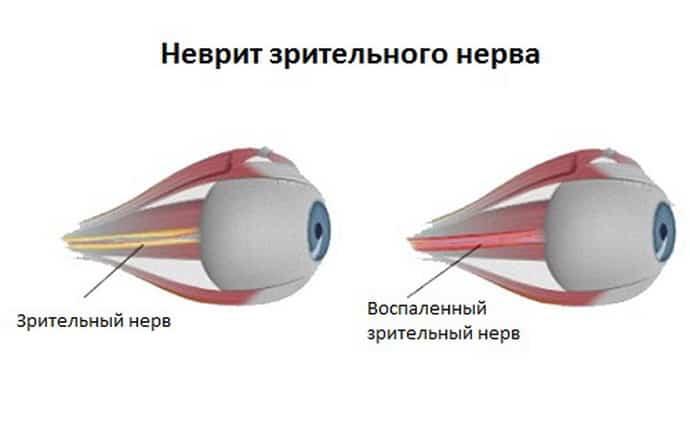Симптомы возникновения неврита зрительного нерва