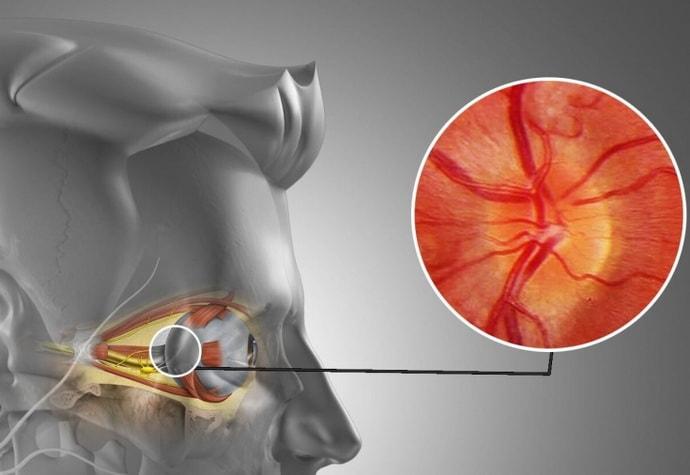Как возникает неврит зрительного нерва