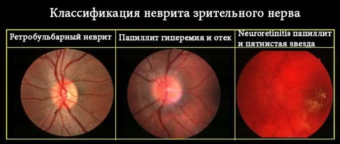 Неврит зрительного нерва – заболевание, нарушающее с окружающим миром
