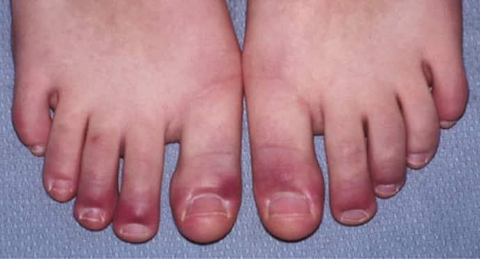Онемение стоп ног: причины, лечение, советы врачей