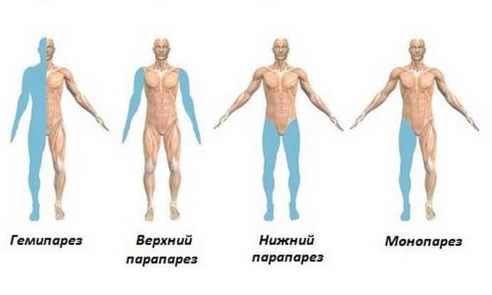 парез это болезнь периферической нервной системы