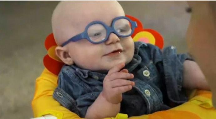 Осложнения пареза лицевого нерва у новорожденного
