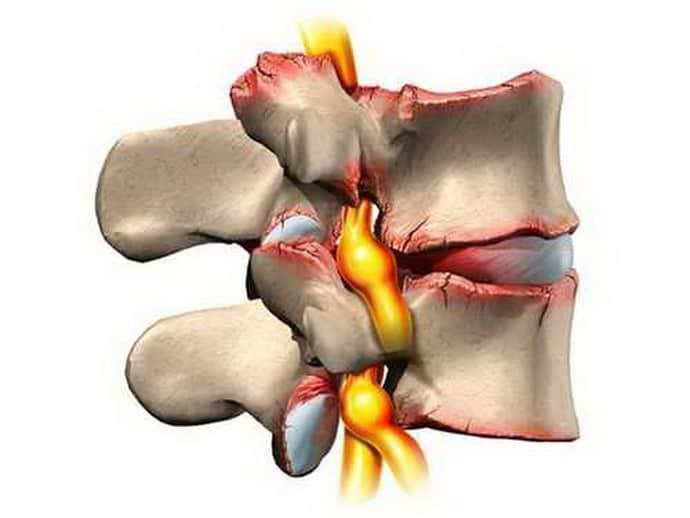 Радикулит – это воспаление нервных корешков спинного мозга