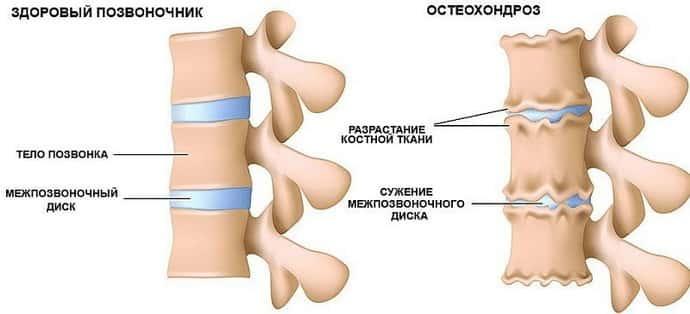 остеохондроз и радикулит в чем разница