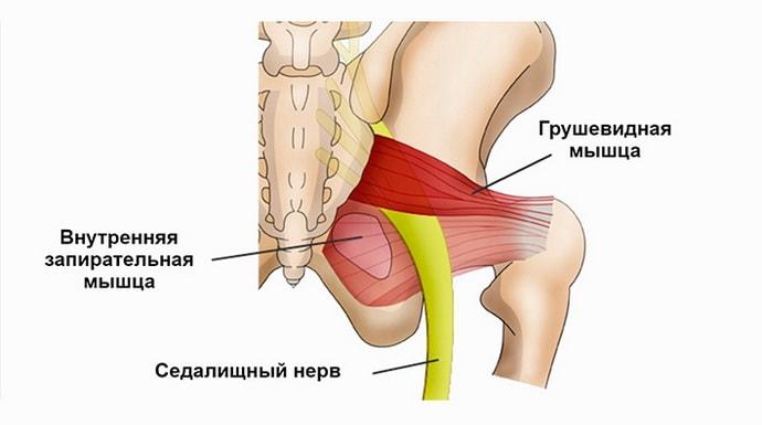Синдром грушевидной мышцы: причины, симптомы, лечение