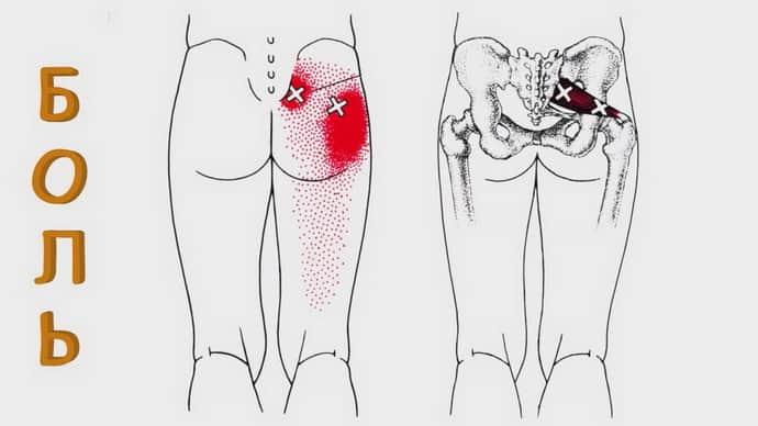 Как проявляется синдром грушевидной мышцы