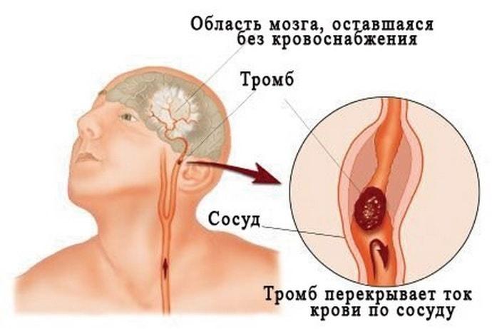 Как лечить спастический тетрапарез