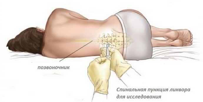 Диагностика при травмах
