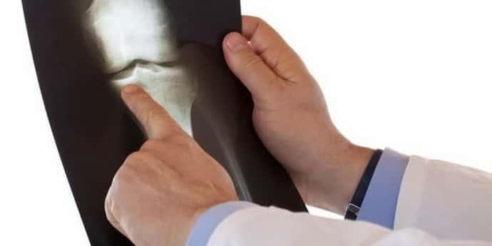 Диагностика при головокружении