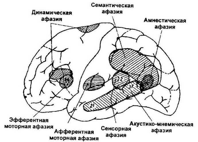 механизм развития афазии после инсульта