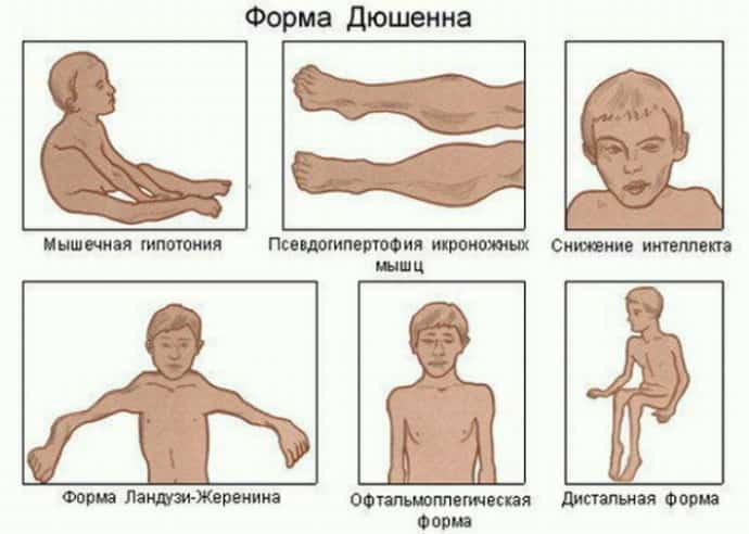 Акушерский паралич: симптомы, причины и лечение