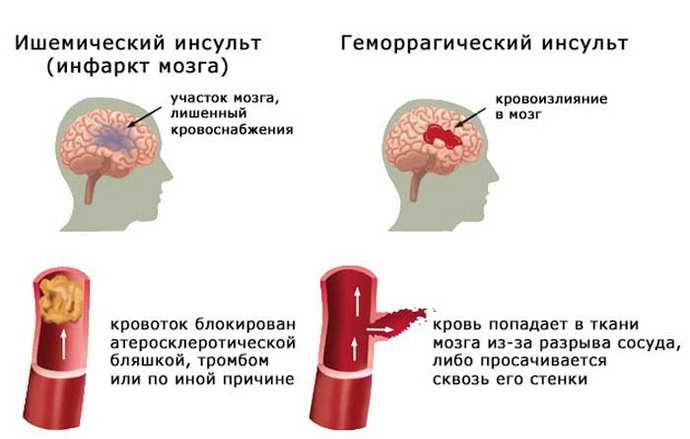 виды алкогольного инсульта
