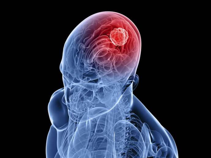 Может ли опухоль быть причиной афазии