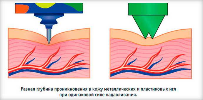 как действует аппликатор Кузнецова при грыже позвоночника