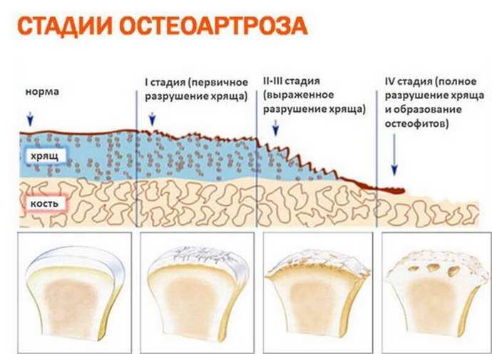 Как развивается остеохондроз у женщин