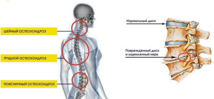 Принцип развития остеохондроза