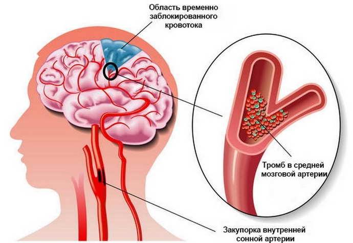 аритмия при остеохондрозе и осложнения