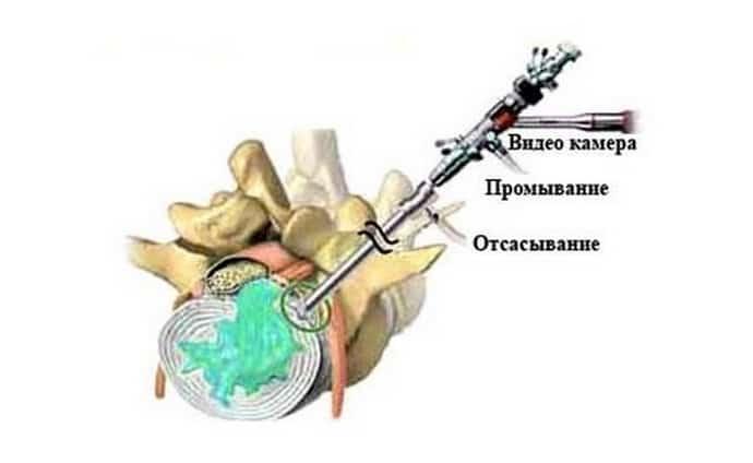 Гидропластика при протрузии
