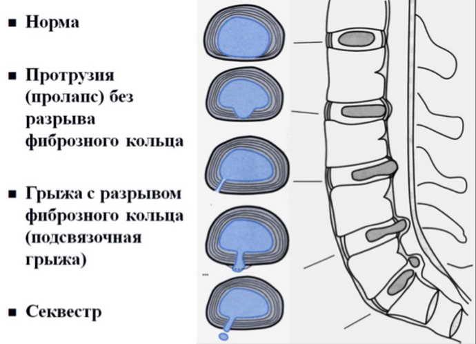 боли при грыже поясничного отдела позвоночника
