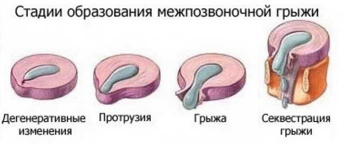 стадии грыжи в позвоночнике