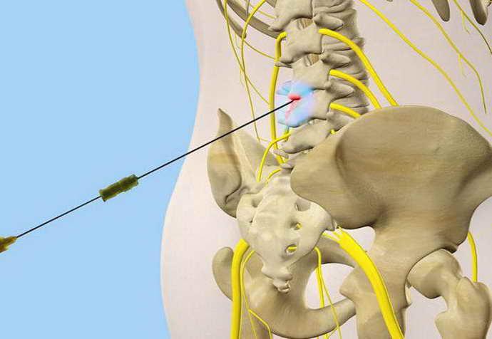 блокада позвоночника при остеохондрозе противопоказания