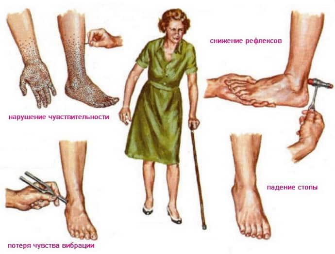Как распознать демиелинизирующую полинейропатию