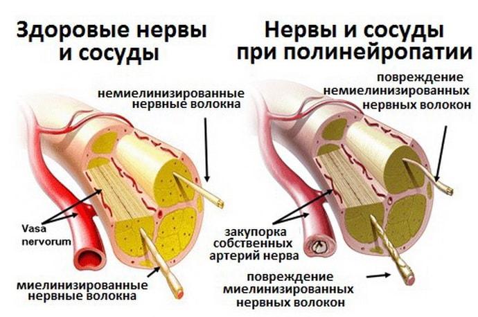 Как выглядят сосуды с диабетической полинейропатией