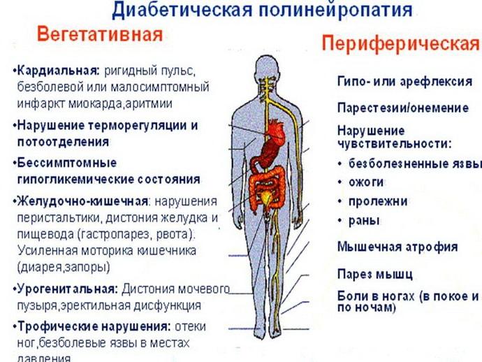 Формы диабетической полинейропатии