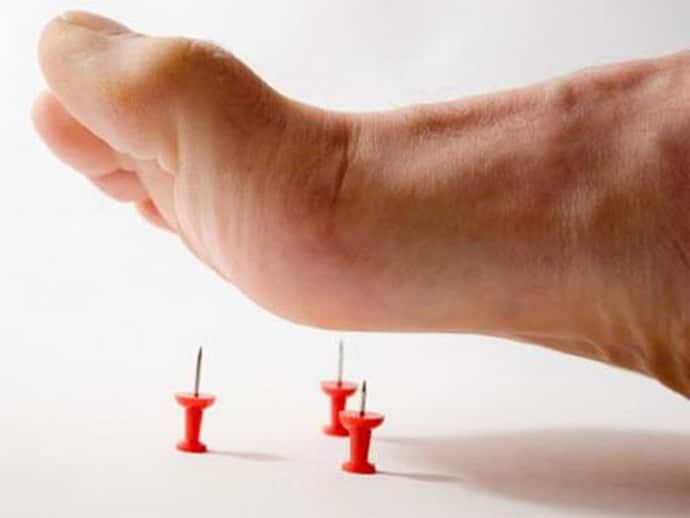 Покалывает в ногах при диабетической полинейропатии