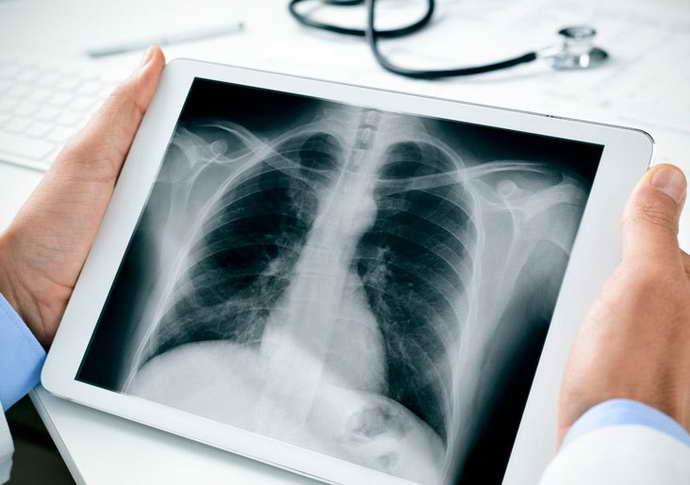 диагностика остеохондроза на рентгене