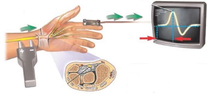 Анализы при дистальной полинейропатии