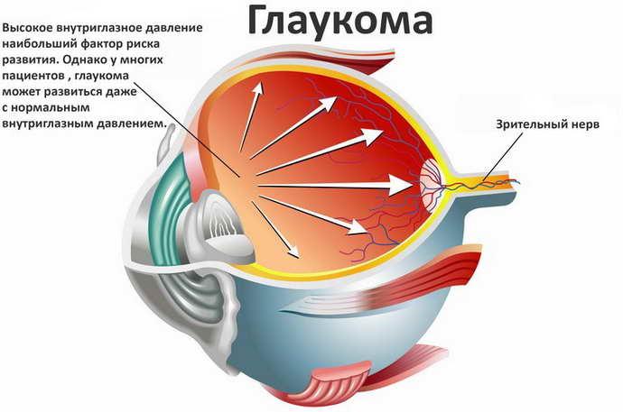 как возникает двоение в глазах при шейном остеохондрозе