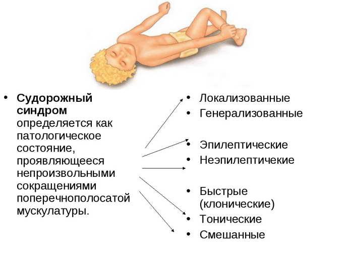 Дифференциальная диагностика припадка эпиоепсии