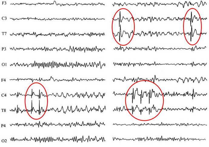 как выглядит эпилепсия на ээг