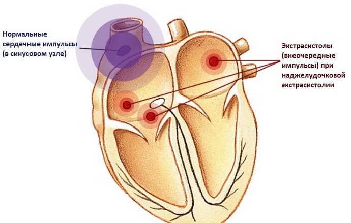 Как связаны остеохондроз и нарушения сердечного ритма