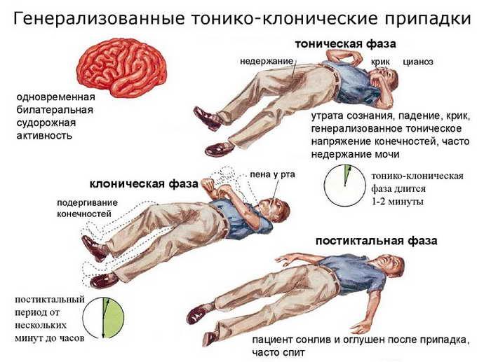 Генерализованные припадки эпилепсии