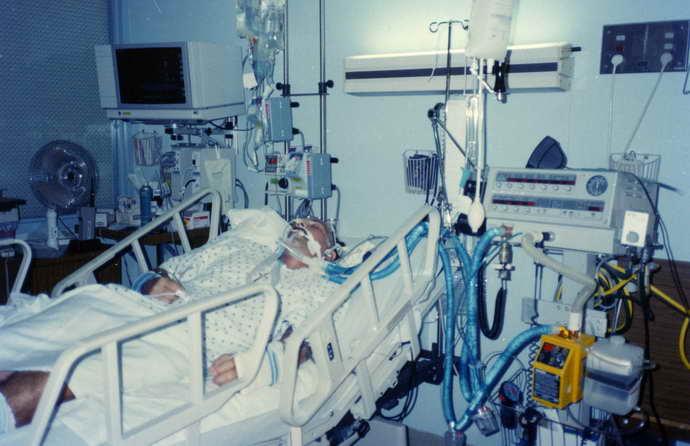 опасность эпилепсии после инсульта