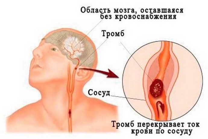 Причины постинсультных припадков