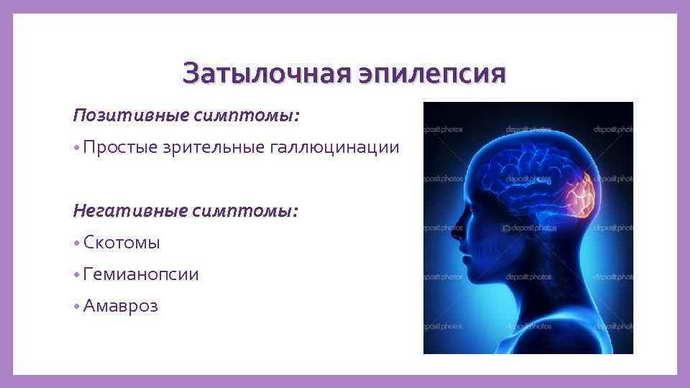 Затылочная эпилепсия