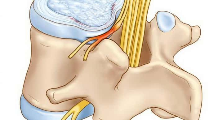 Симптомы вертеброгенной цервикобрахиалгии