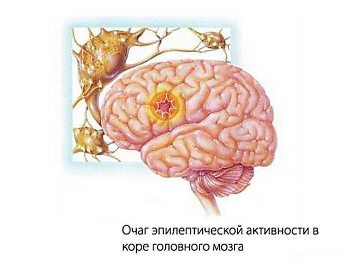 Что такое фокальная эпилепсия у детей